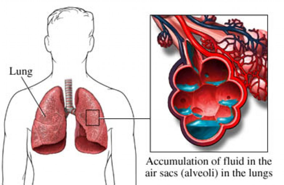 Acute-pulmonary-edema-mechanism